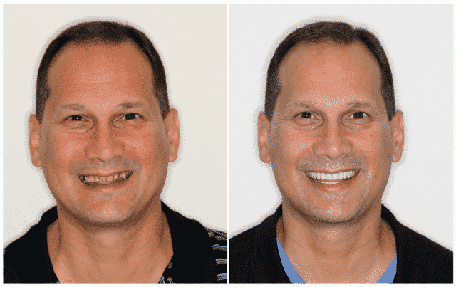 Paul's ARCHPOINT Smile Transformation